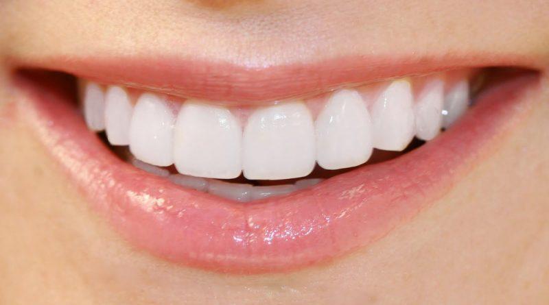 красива усмивка с хубави зъби